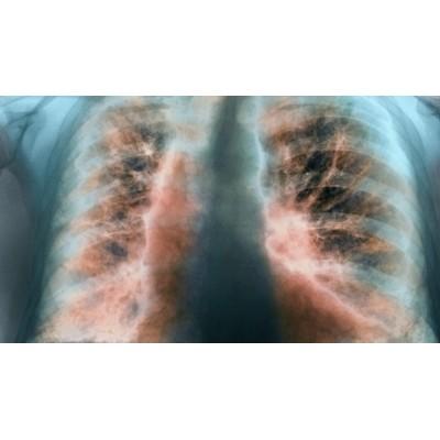 Поражение легких при коронавирусе: симптомы и диагностика