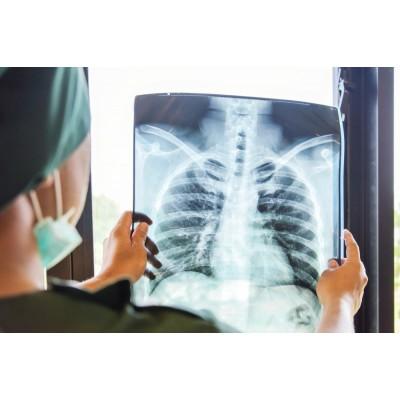 Как восстановить лёгкие после коронавируса